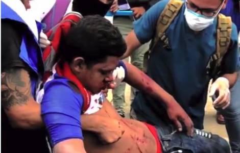 L'Organizzazione degli Stati Americani condanna Ortega per la repressione